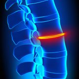spine surgery in Germany