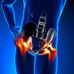 bilateral hip joint replacement Germany