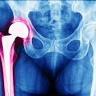 medical treatment germany - artificial hip replacement surgery