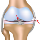 ACL (anterior cruciate ligament) surgery in Germany